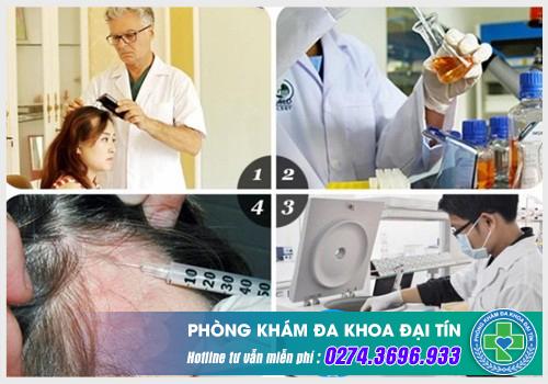 Da Liễu 306 Đại Lộ Bình Dương - giải pháp cho người bị rụng tóc