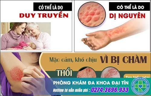Chàm da là bệnh gì? Phương pháp điều trị như thế nào?