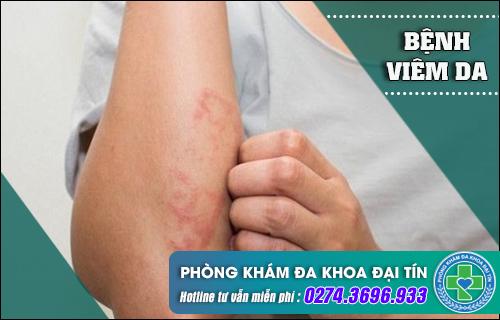 Những nguy hại của viêm da có thể bạn nên biết