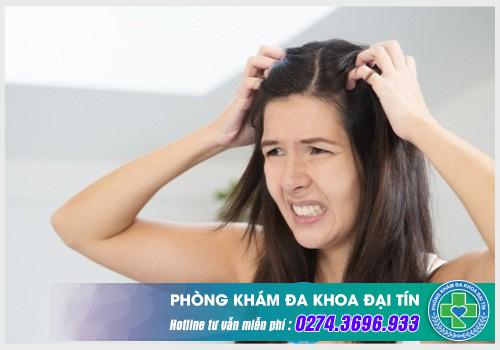 Các bệnh da đầu nào phổ biến hiện nay