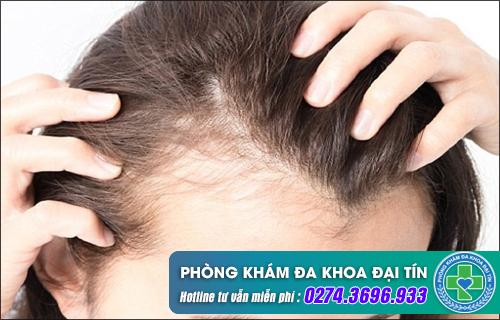 Biểu hiện của bệnh nấm da đầu là gì?