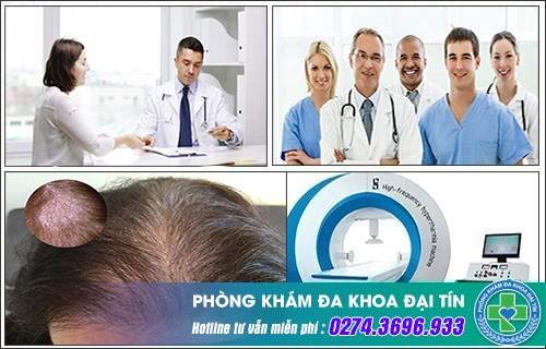 Điều trị nấm da đầu bằng phương pháp nào?